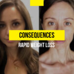 Consequences of rapid weight loss