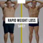 Rapid Weight Loss: Is it safe